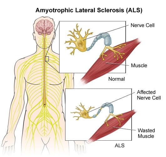 ALS-wheelchair