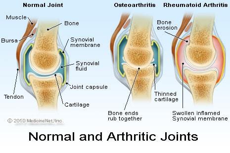 Rheumatoid-Arthritis-wheelchair