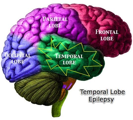 Temporal-Lobe-Epilepsy