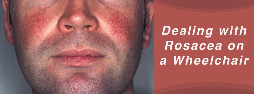 Dealing with Rosacea on a Wheelchair